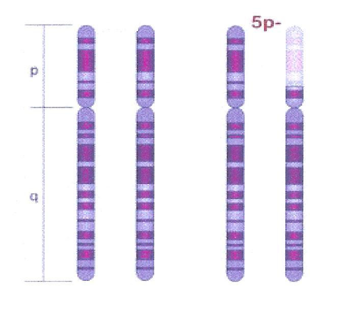 cromosoma5bueno y malo 001
